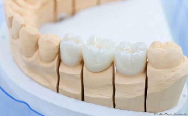 Zahnersatz: Zahnkronen, Zahnbrücken und herausnehmbarer Zahnersatz
